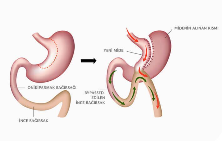 gastrik bypass ameliyatı